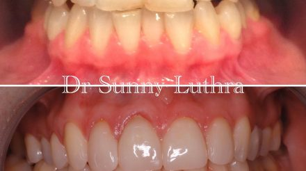 Dr Sunny Luthra